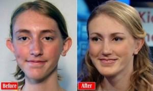 plastic-surgery-girl